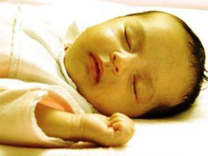 Tips Merawat Bayi Kuning