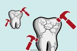 Ampuh Atasi Sakit Gigi Dengan Obat Alami