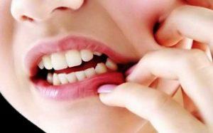 Gigi Ngilu Dan Penanganannya