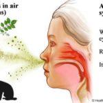 Rhinitis: Gejala, Penyebab, Pengobatan