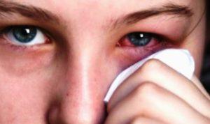 Mata Bintitan. Gejala Penyebab, Cara Mengatasi