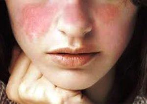 Pengobatan Penyakit Lupus, Penyakit Seribu Wajah
