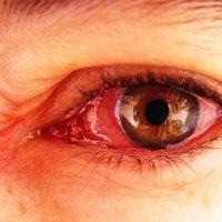5 jenis penyakit mata