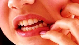 Cara Cepat Atasi Gigi Berlubang Dengan Bahan Alami