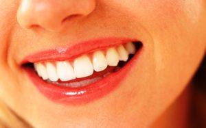Tips Memutihkan Gigi Dengan Bahan Alami Secara Cepat Dan Aman