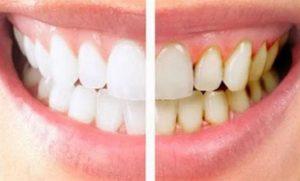 Cara Cepat Membersihkan Karang Gigi Secara Alami
