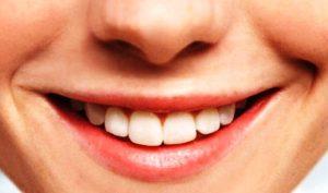 Tips Dan Cara Memutihkan Gigi Yang Kuning Secara Alami Cepat Paling