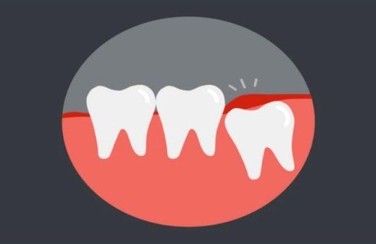 Gejala Impaksi Gigi Bungsu Cara Mengatasi dan Pencegahan